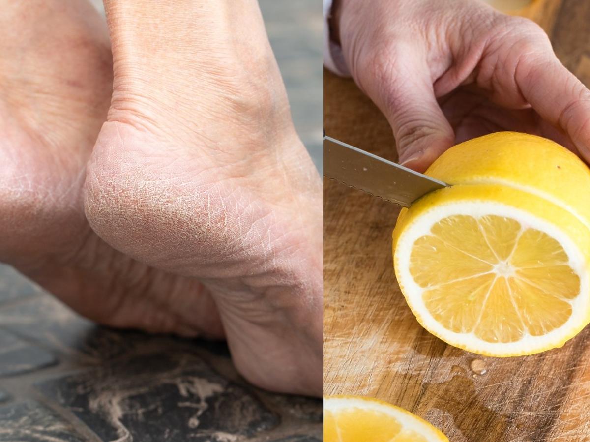 Weźcie połówkę cytryny i natrzyjcie nią pięty. Efekt totalnie was zaskoczy